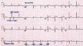 heartbeat of copier, ειναι σαν καρδιογραφημα...